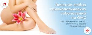 Операция по гинекологии ОМС