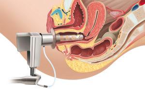 лазерная гинекология