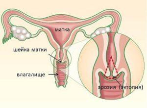 эрозия шейки матки Москва